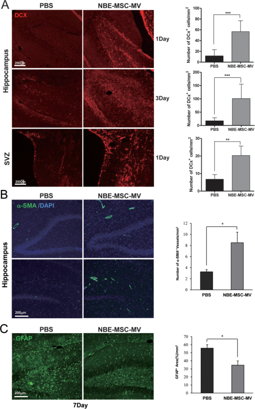 NBE-MSC-MV administration increases neurogenesis and reduces reactive astrogliosis at the ischemic boundary in the rat brain.(A) Compared with PBS control treatment, the number of DCX-positive cells at the ischemic boundary significantly increased immediately after NBE-MSC-MV treatment. *P < 0.05, **P < 0.01, ***P < 0.001, n = 5 per group. (B) Representative micrographs of α-SMA-positive vessels in ipsilateral hippocampal vessels at day 7. Compared with PBS control treatment, the number of α-SMA-positive vessels increased in the ipsilateral hippocampal area after NBE-MSC-MV treatment. Data are presented as mean numbers of α-SMA-positive vessels per group. *P < 0.05, n = 5 per group. (C) The number of GFAP-positive cells significantly decreased in response to NBE-MSC-MV transplantation compared with that of PBS control injection at day 7. Data are presented as percent of GFAP-positive area/field. *P < 0.05, n = 5 per group. Scale bar = 200 μm. Values are indicated as means ± SD.
