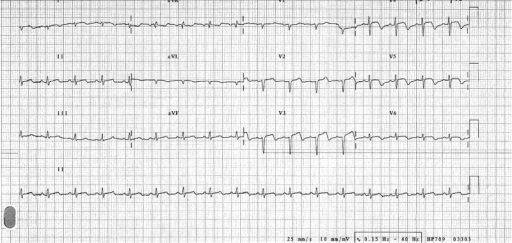 Twelve-lead ECG. This demonstrates a sinus tachycardia, with ST-segment elevation in leads V3–V5. There is T-wave inversion in leads V3–V6.