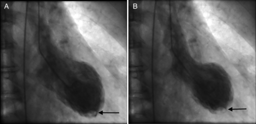 LV angiogram images in diastole (A) and systole (B) showing apical ballooning and an apical filling defect (arrow) highlighting the LV thrombus.