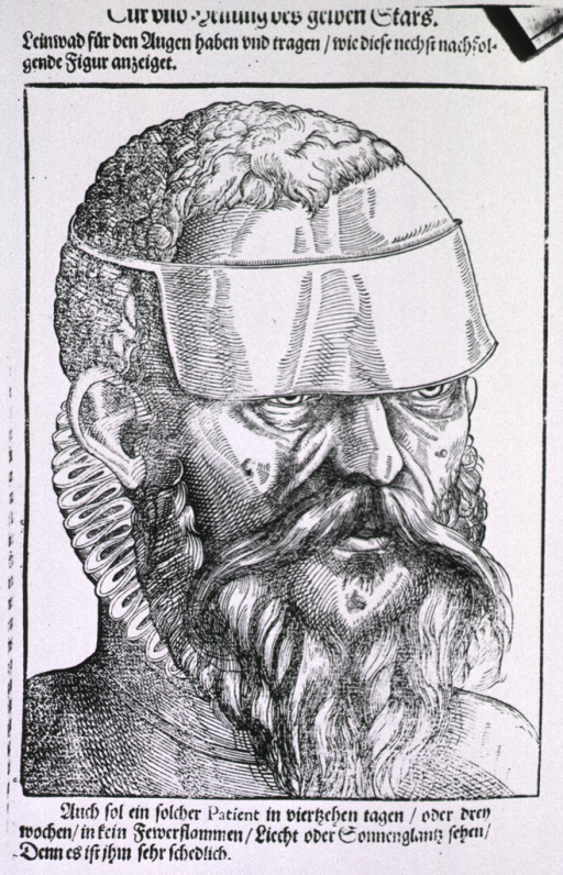 <p>Close-up of the face of a man wearing an eyeshade as treatment for yellow cataract.</p>