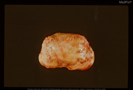 External surface of surgically resected cephalohematoma. Same case as 29276.