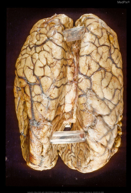 Subfalcial (cingulate gyrus) herniation. from the left hemisphere.