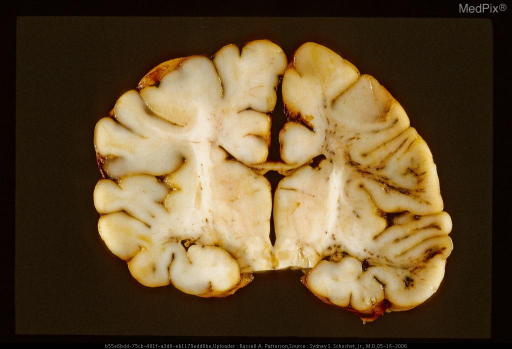 Acute blunt trauma in an infant. Note the streak-like hemorrhage in the gyral white matter on the right side of the picture. Same case as Figures 29283 and 29284.
