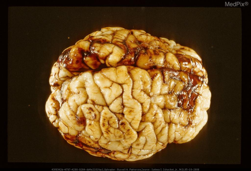 29284 Acute blunt trauma in an infant. Note the subarachnoid hemorrhage and contusions on right cerebral hemisphere.  Same case as Figures 29282 and 29283.