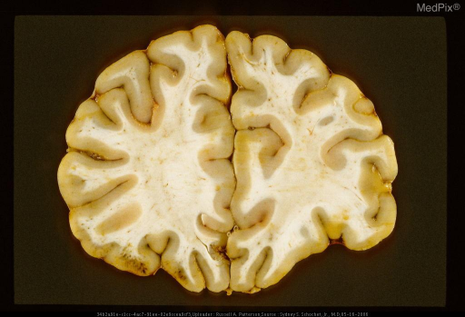 Coronal section showing acute contusions manifest by streak-like hemorrhages in cortex of left orbitofrontal gyri. Same case as Figure  29286.