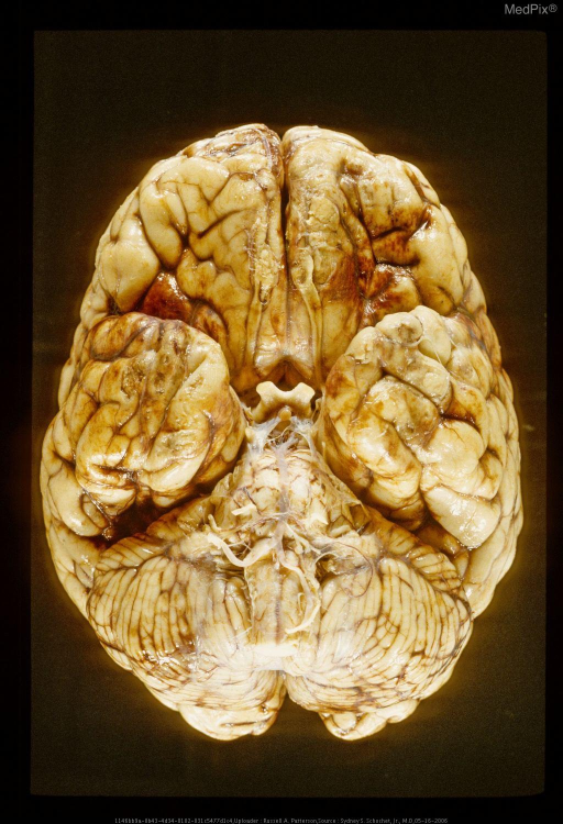 Base of brain showing acute contusions on inferior surface of left frontal lobe and temporal lobes. Same case as Figure 29285.