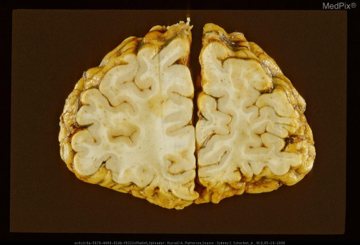 Coronal section (viewed AP) showing remote orbitofrontal contusions manifest by wedge-shaped excavations of cortex and superficial white matter, and hemosiderotic discoloration of contused areas.