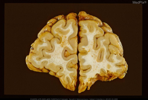 Coronal section (viewed AP) showing remote orbitofrontal contusions manifest by wedge-shaped excavations of left orbitofrontal cortex and superficial white matter, and hemosiderotic discoloration of contused area.