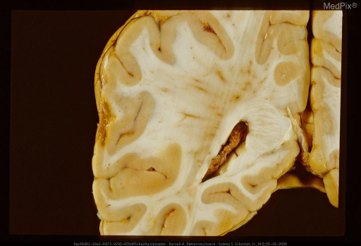 Coronal section showing small remote contusion on lateral surface of left hemisphere manifest by wedge-shaped excavation of cortex and superficial white matter and hemosiderotic discoloration of contused area. Same case as 29290.