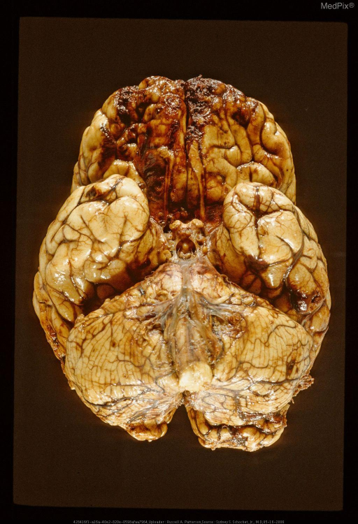 Extensive contusions and laceration of inferior surface of frontal lobes (contre coup lesions) secondary to fall on occiput.