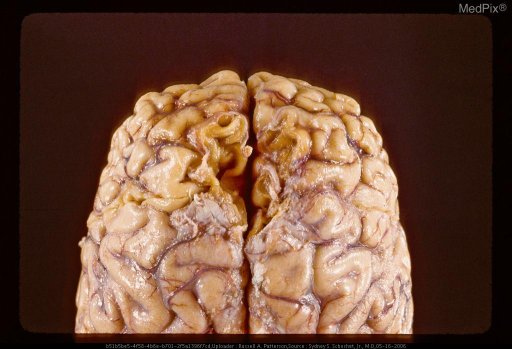 Remote contusions manifest by excavation of cortex and white matter on both sides of interhemispheric fissure resulting from blow to vertex. Same case as Figure 29296.