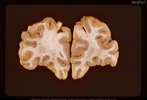 Coronal section showing remote contusions manifest by excavation of cortex and white matter on both sides of interhemispheric fissure resulting from blow to vertex.  Same case as Figure 29295.