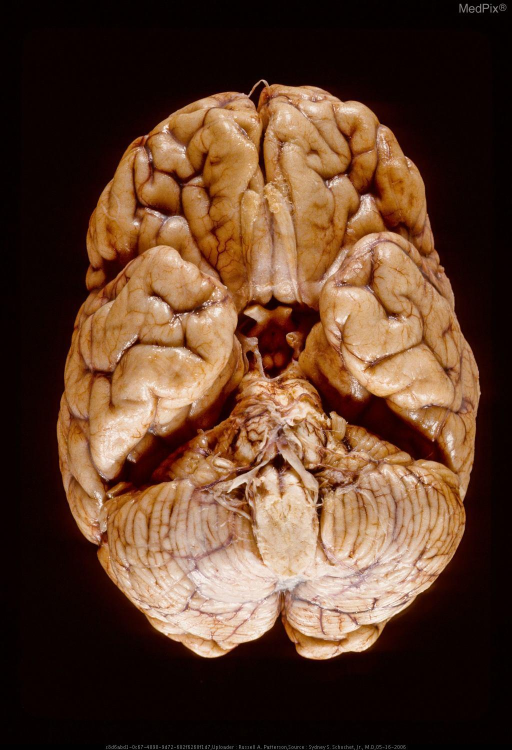 Acute contusions on basal surfaces of frontal lobes. Same case as Figure  29298.