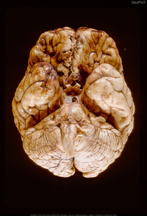 Acute contusions and lacerations in orbitofrontal gyri and gyri recti.