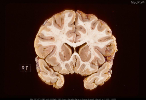 Acute contusions on dorsomedial surface of right temporal lobe manifest by streak-like hemorrhage in cortical gray matter perpendicular to pial surface.