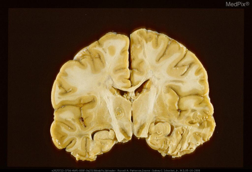 Thalamotomy lesion for spasticity from multiple sclerosis.  Note the areas of demyelination at the lateral angles of the ventricular system, in the right superior frontal gyrus, and in the right medial frontal gyrus.