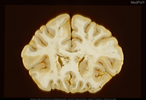 Coronal section through genu of corpus callosum with petechial hemorrhages secondary to acute diffuse axonal injury.