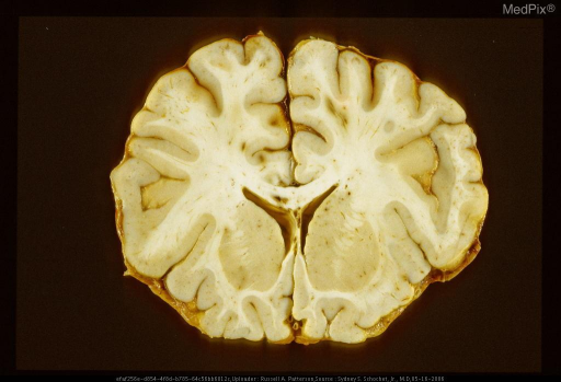 "Petechial hemorrhage in corpus callosum and streak-like hemorrhages in white matter of right superior frontal convolution (so-called ""gliding contusion"") secondary to acute diffuse axonal injury."