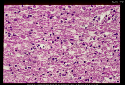 Microscopic section showing scattered eosinophilic spheroids at the ends of disrupted axons in the white matter of the mesencephalon secondary to subacute diffuse axonal injury. ( Hematoxylin-eosin stain.)
