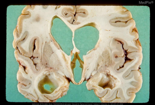 Coronal section of cerebral hemispheres showing enlargement of ventricular system secondary to remote diffuse axonal injury.  Note also the atrophy and discoloration of mammillary bodies presumably secondary to Wernicke's encephalopathy. The patient was comatose for about 1 year. Same case as Figure 52, 29318 & Figure 55, 29321.