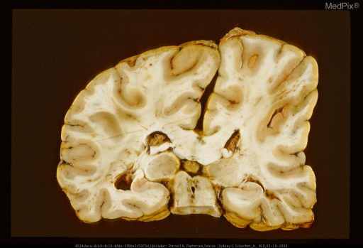 Deformation of brain secondary to epidural hematoma.  Same case as Figure 66,  29332 & Figure 69, 29335.