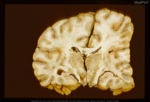 Deformation of brain secondary to epidural hematoma.  Same case as Figure 66,  29332 & Figure 68, 29334.