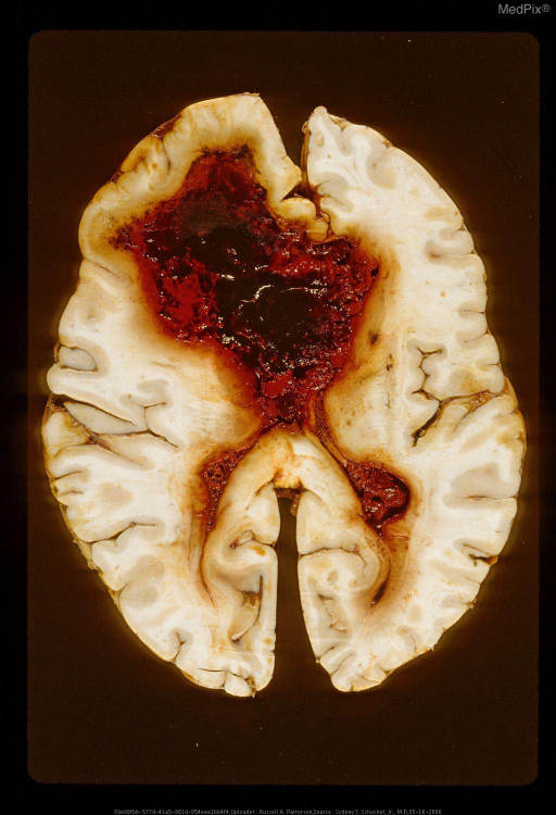 Intraparenchymal hematoma. Hemorrhage about shunt.