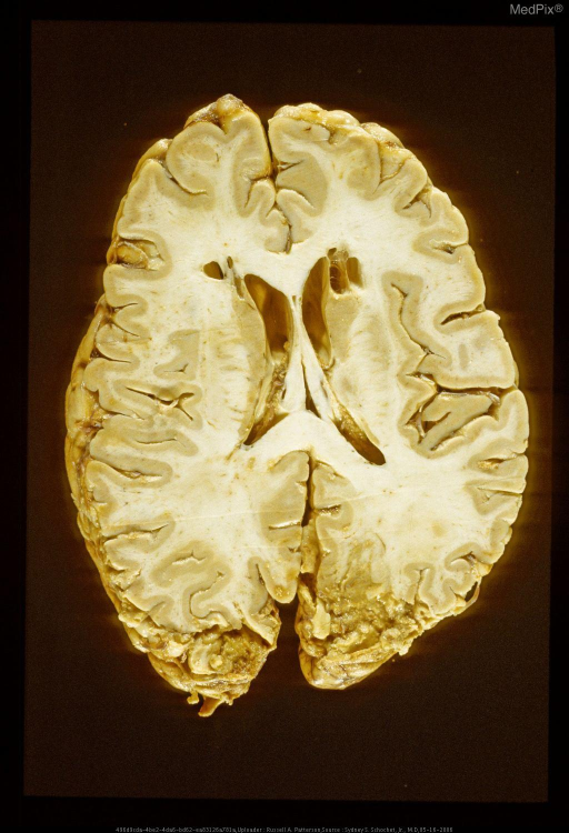 "Remote cavitary lesions in frontal white matter and rostral caudate nuclei secondary to ""ice - pick"" lobotomies.  Patient also has subacute occipital infarcts."