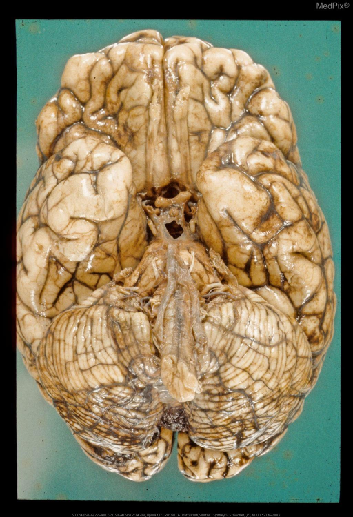 Left Frontal Coup and DAI.  Base of brain with diffuse axonal injury and minimal subarachnoid hemorrhage.