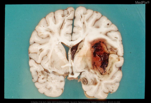 Left Frontal Coup and DAI.  Coronal section of brain with diffuse axonal injury including streak-like hemorrhages in superior frontal convolutions, and a traumatic intraparenchymal hemorrhage.
