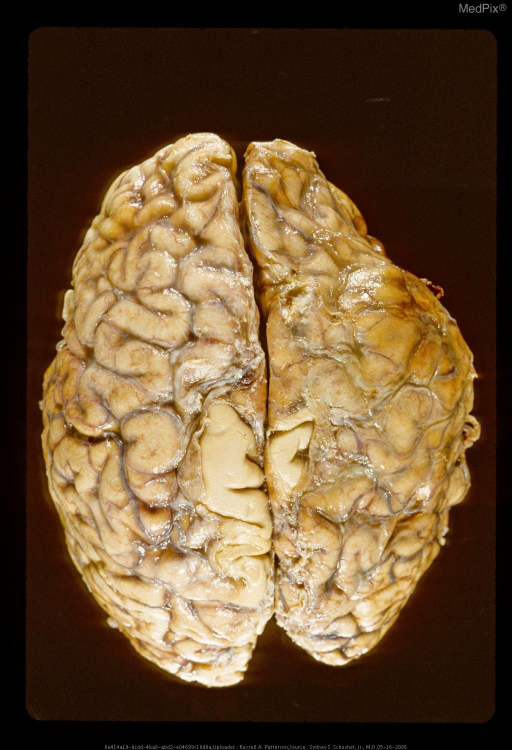 Deformation of frontal lobe secondary to subdural hematoma.