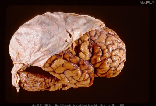 Gunshot wound with defect in overlying dura and underlying brain.