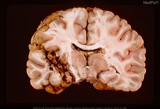 Oblique coronal section showing missile path in cerebrum.
