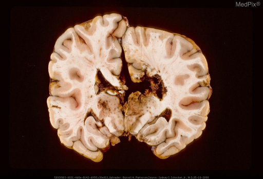 Reconstructed coronal section of brain with gunshot wound.  Same case as Figure 107, 29373.