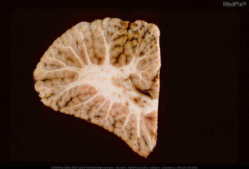 Section of cerebellum showing acute herniation contusions on inferior surface of cerebellar hemisphere (top of picture) secondary to gunshot wound of brain.