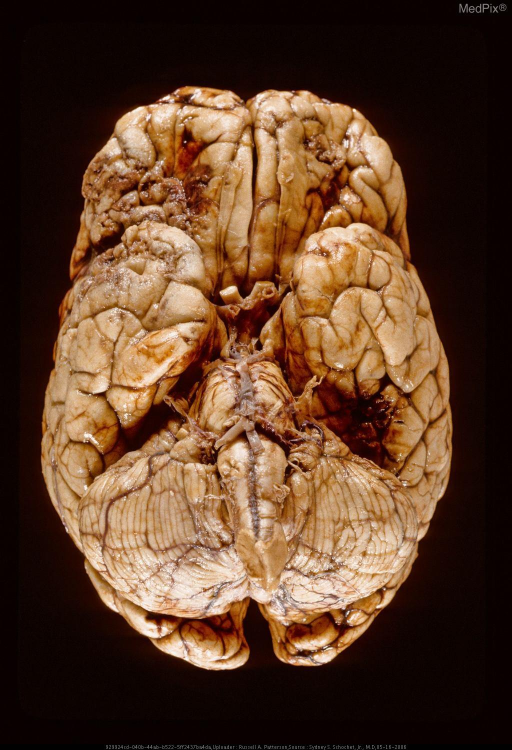Orbitofrontal and temporal lobe contusions secondary to gunshot wound of brain.
