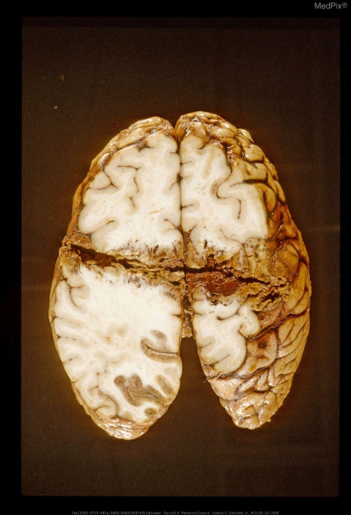 Oblique horizontal section of brain with gunshot wound.  Note also the hemorrhagic infarction of the cortex in the left occipital lobe secondary to herniation and temporary impairment of perfusion through the left posterior cerebral artery. Same case as Figure 29380.