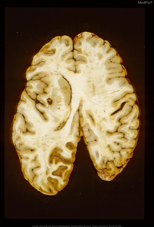 Oblique horizontal section of brain with a gunshot wound.  Note the secondary missile wound in the insular cortex on the left side of the picture and the hemorrhagic infarction of the occipital cortex secondary to temporary impairment of perfusion through the left posterior cerebral artery.  Same case as Figure 29379.