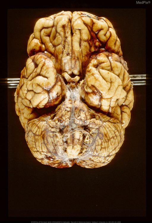 Base of brain with gunshot wound.  A glass rod has been passed through the missile path.