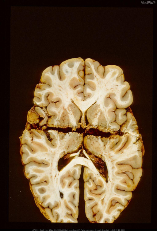 Horizontal section of brain with gunshot wound.