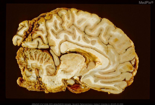 Oblique parasagittal section of brain with gunshot wound showing the missile path continuing from the occipital lobe into the cerebellum.