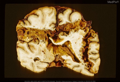 Oblique coronal section of brain with gunshot wound.  The missile path shows internal ricochet.