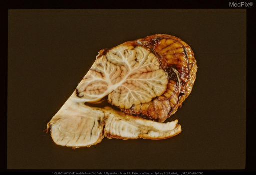 Sagittal section of brain stem and cerebellum showing pontomedullary laceration.