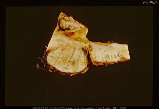 Sagittal section of brain stem showing pontomedullary laceration.Same case as Figure 29392.