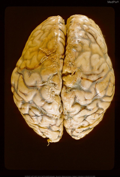Dorsal surface of frontal lobes showing thermal changes in cortex and blood vessels. The thermal changes are the result of a fire. Same case as Figures 29402 & 29404.