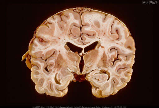 Coronal section of brain and dura with thin but extensive subdural neomembranes.  Same case as Figure 29405.