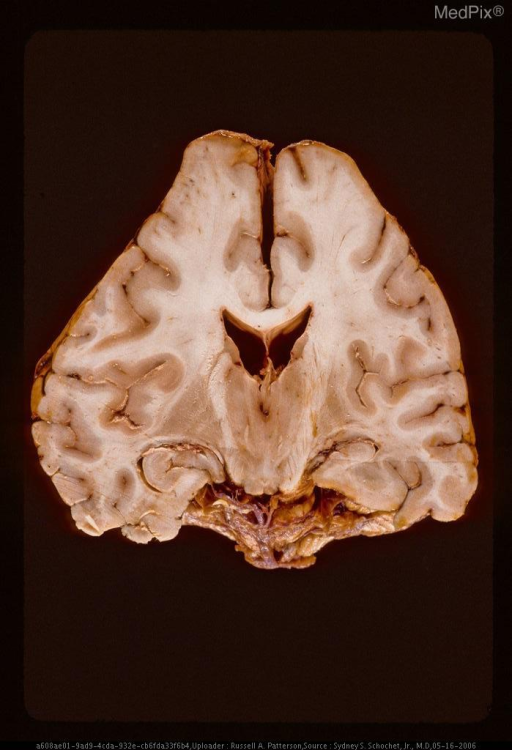 Coronal section of brain showing marked deformation from bilateral chronic subdural hematomas.