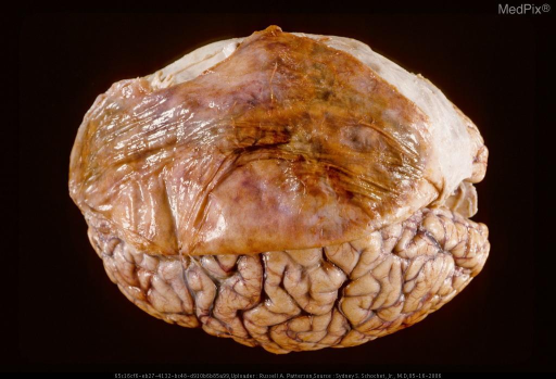 Dura reflected back onto surface of opposite surface of dura and brain showing organized  chronic subdural hematoma on undersurface of left dural leaf.