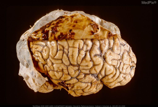 "The amber fluid contents poured away when the dura was incised. The small patches of more recent hemorrhage from the subdural membranes lead to ""growth"" of the chronic subdural hematoma."