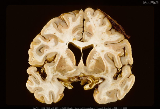 Coronal section of brain with portion of small subdural hematoma overlying and slightly deforming right frontal lobe.